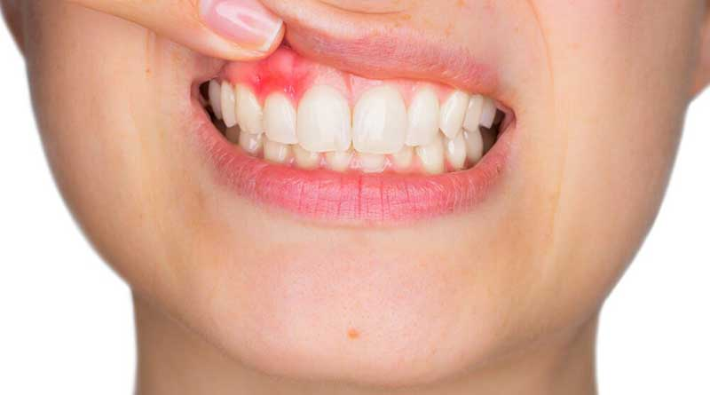Do your gums bleed usually? These remedies solve it