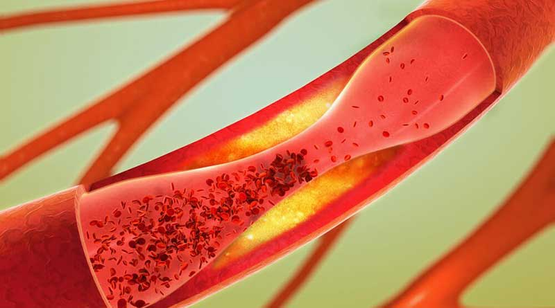 How to take care of arterial health: 6 healthy habits