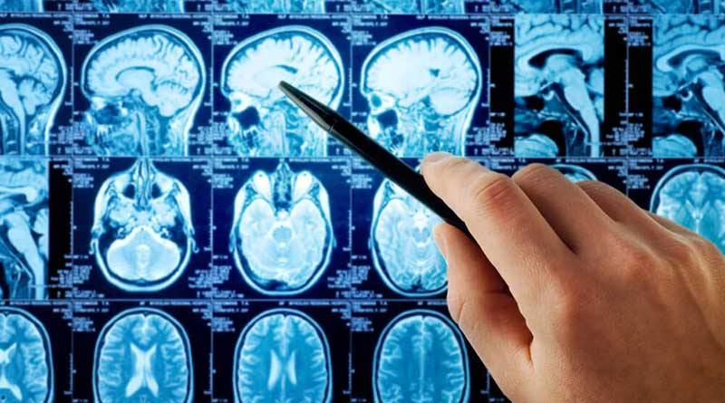 What are the first symptoms of brain cancer?