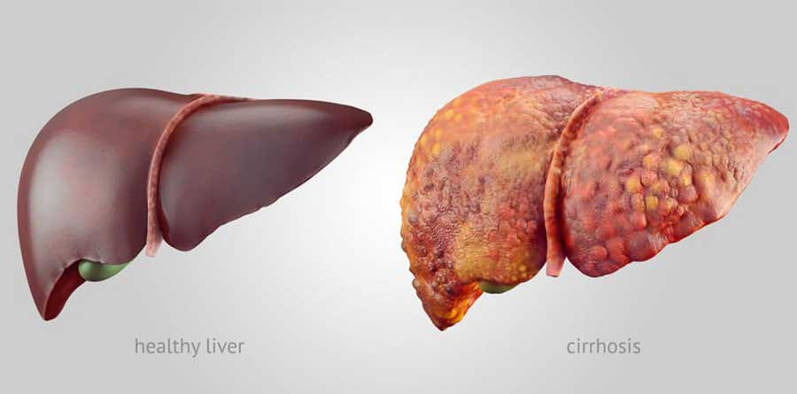 How is a liver transplant?