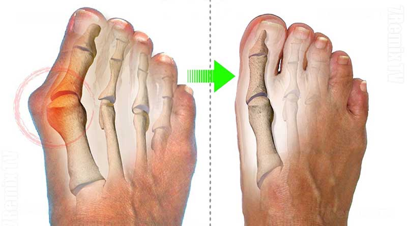Bunions: how to prevent them and what is their treatment